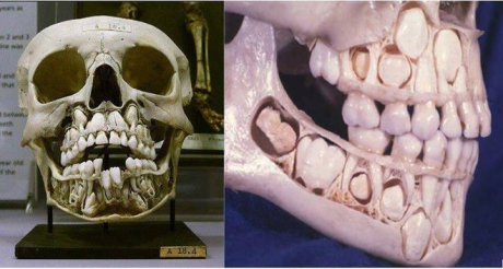 skull before losing teeth